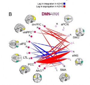 ADHD related maturational lags.   Red and blue indicate areas of stronger connectivity lag