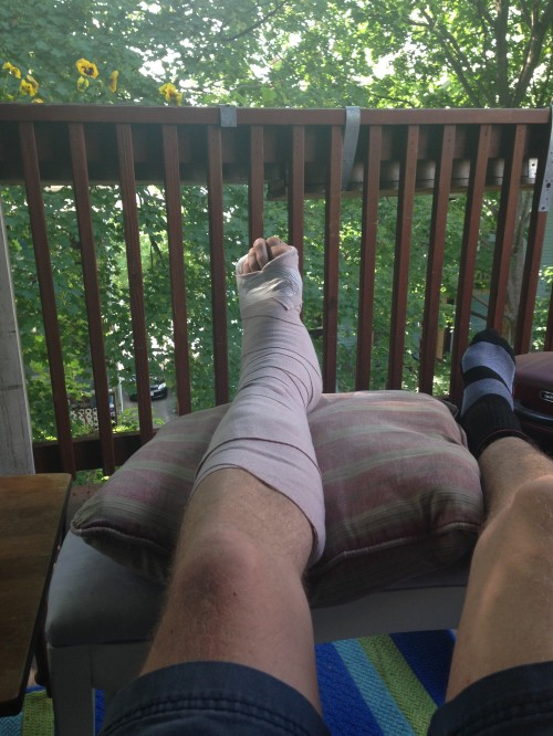 Four days after surgery, on the porch.